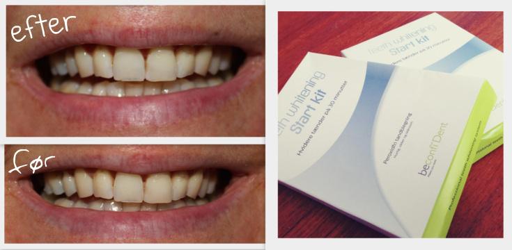hvide tænder matas